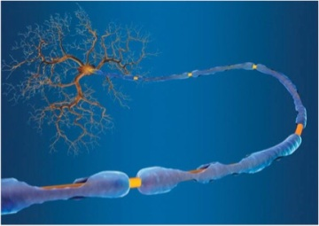 This is a schematic of a damaged myelin sheath caused by Multiple Sclerosis.